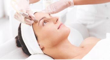Microneedling Treatment Colchester